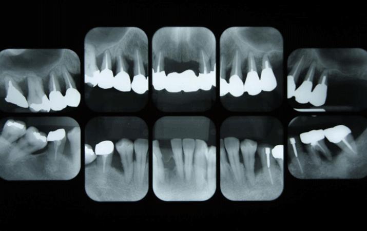 再生歯科医療とは
